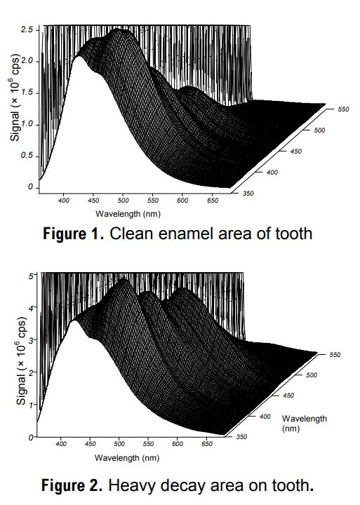 Characterizing Tooth Decay with Fluorescence