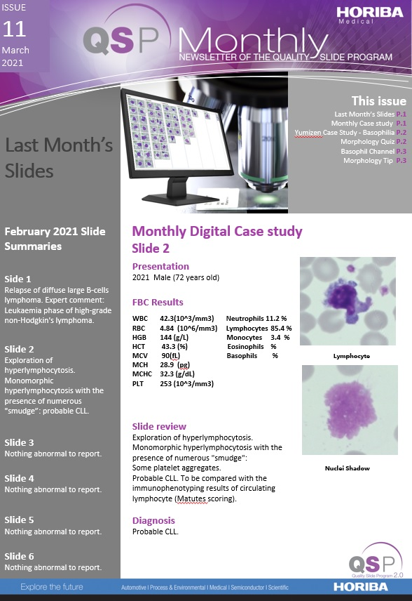 QSP Newsletter_Issue 11_March 2021_HORIBA Medical